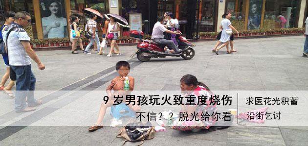 成都街头现烧伤男孩乞讨  为使人相信脱光乞讨