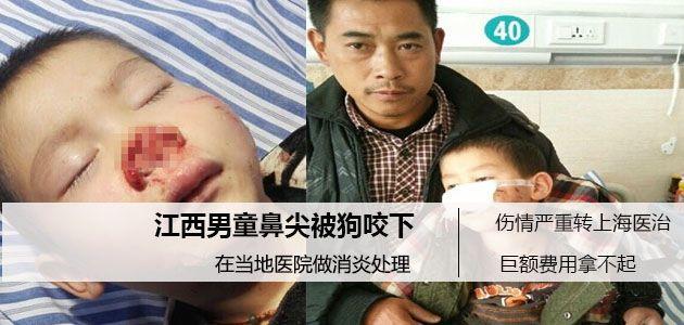 可怜的孩子 男童鼻尖被狗咬下 无钱医治鼻梁只好用药水保存