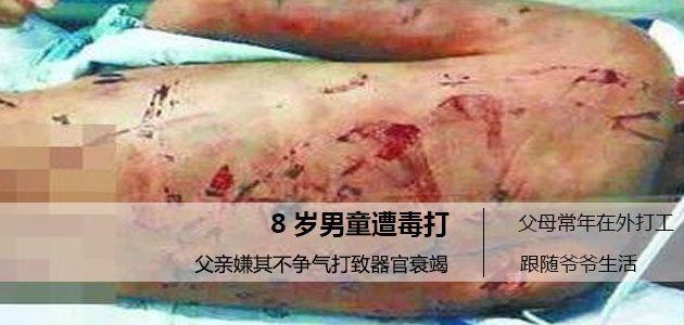 徐州8岁男孩弄坏自家电动车被父毒打  器官衰竭!