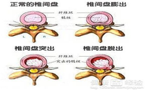 腰椎间盘突出患者如何正确睡姿?如何治疗好腰突?
