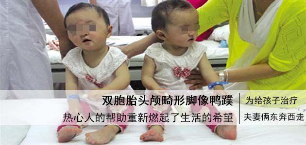 """河南双胞胎姐妹患怪病  头颅畸形手脚像""""鸭蹼"""""""