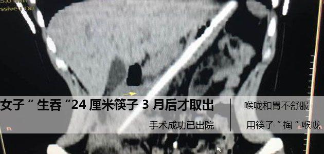 """长24厘米的筷子""""掉""""进肚里  3个月后才取出"""